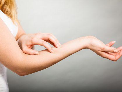 Za alergijske bolesti kože
